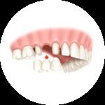 Brücke Zahn günstig smilodentax