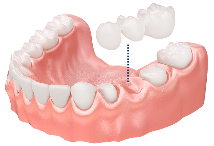 Zahnersatz günstig smilodentax