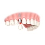 Zahn Krone günstig smilodentax